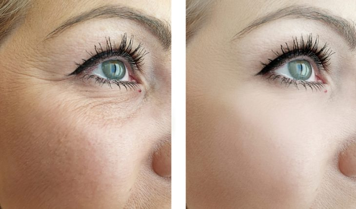 Get Rid of Under-Eye Wrinkles